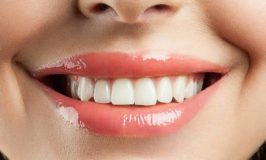 Advice to Make You Smile: How To Keep Your Teeth Healthy