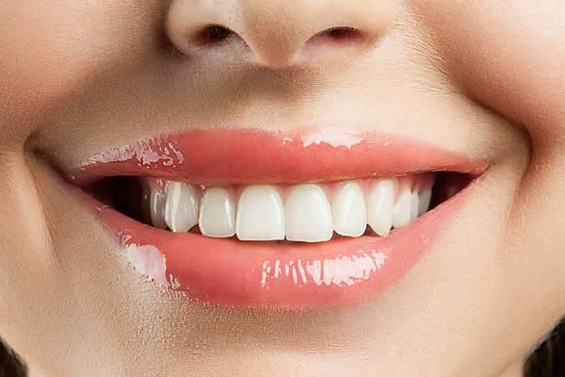 teeth-smile